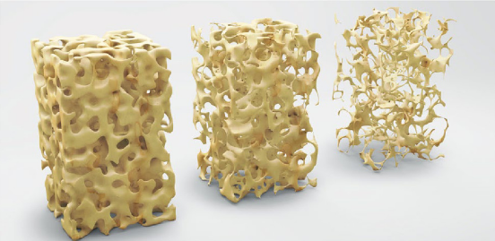 Osteoporose-Prophylaxe und Osteoporose-Therapie mit Vitamin D, Vitamin K2 und Magnesium